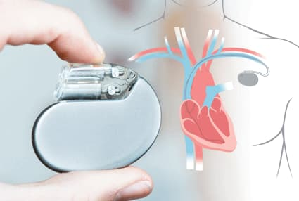 Permanent Pacemaker (PPM)